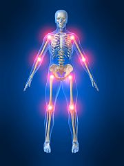 Inflammation: A Key Concept in Treating Disease & Supporting Optimal Health